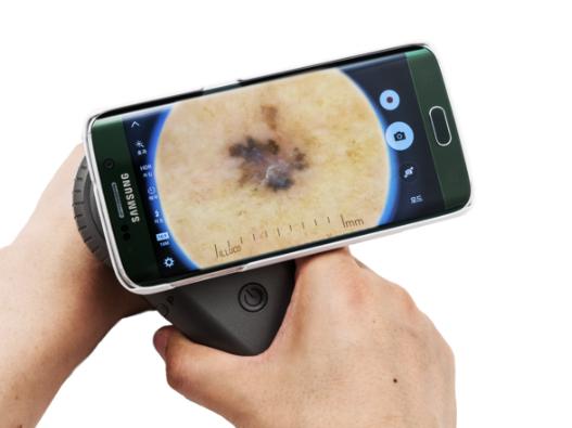 innovation_dermatoscope